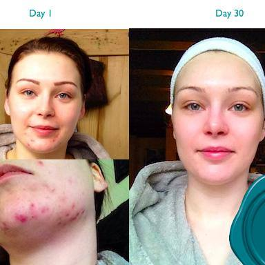 jodie-cole-premae-skincare-testimonial-pre-and-post-30-day-challenge